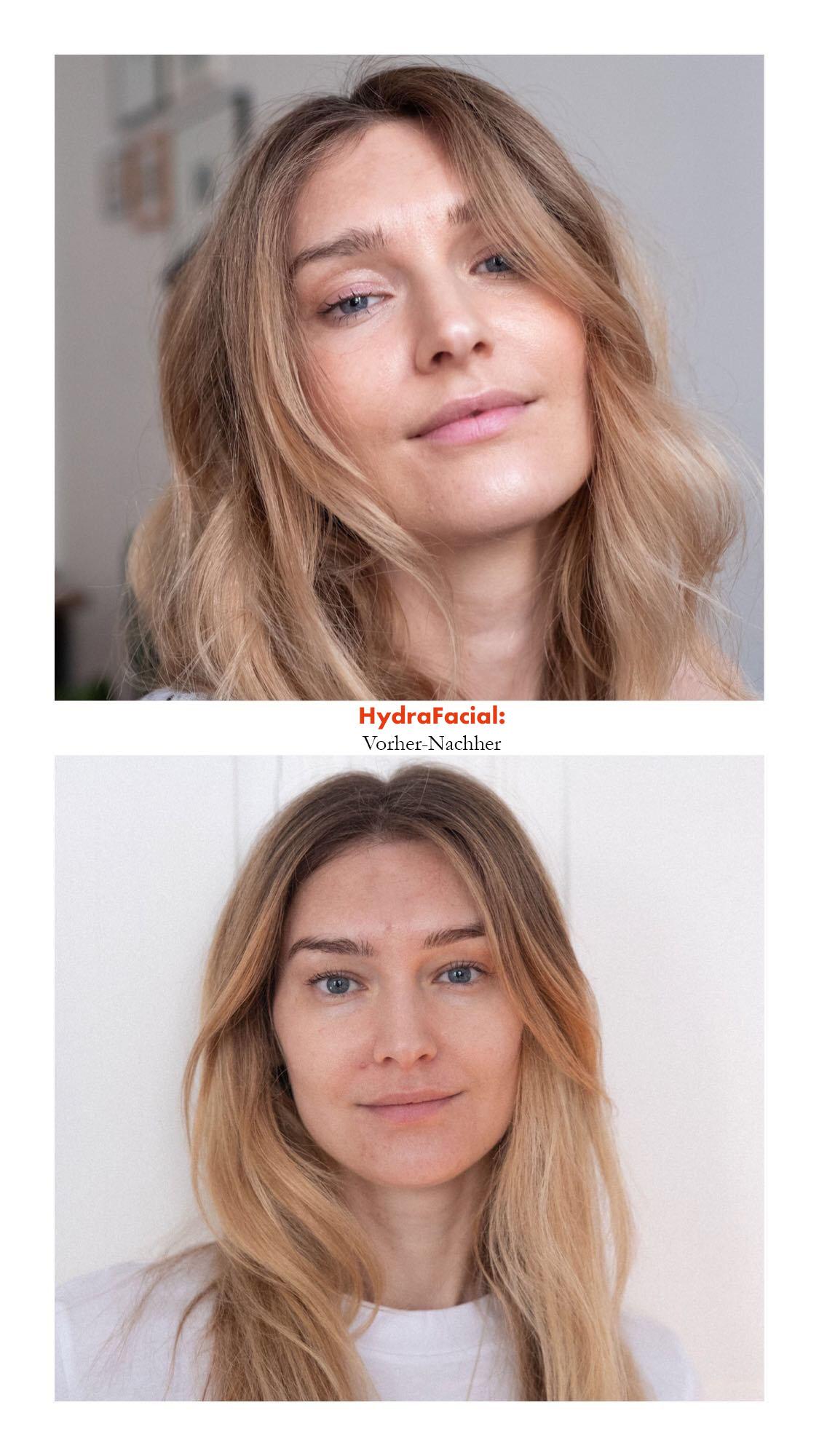 Beautyblog HydraFacial Vorher Nachher_1